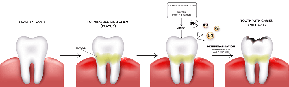 Dental plaque or mass of bacteria can attack the enamel - and cause tooth decay and gum decease.