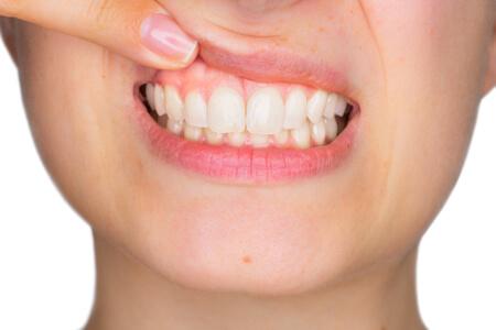 Durch die richtige Mundhygiene erhält man gesundes Zahnfleisch und gesunde Zähne.